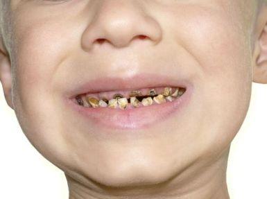 gigi balita